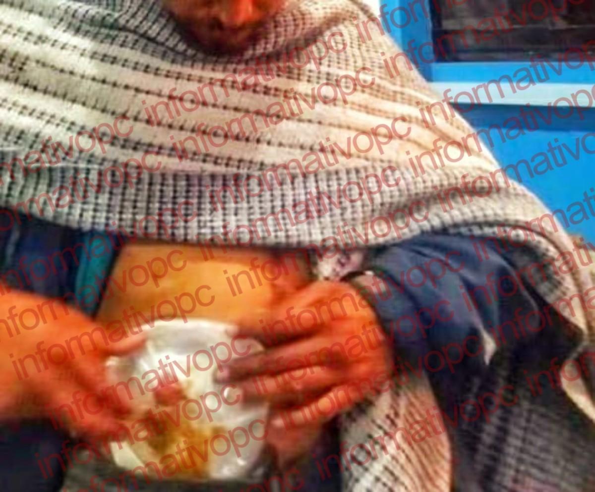 Moviliza a autoridades reporte de heridos por armablanca